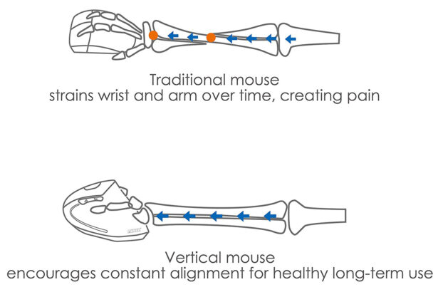 What Is The Best Ergonomic Mouse? - Mouse Arm Twisting